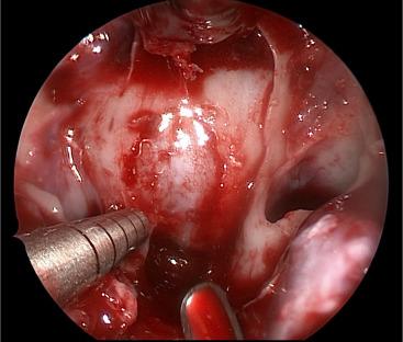 endoskopiki adenomatektomi