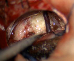 epidermoid
