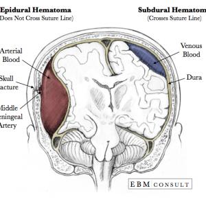 Η εικόνα δείχνει τη διαφορά ανάμεσα σ' ένα επισκληρίδιο αιμάτωμα και σε ένα υποσκληρίδιο αιμάτωμα εγκεφάλου