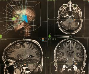 cyberknife ακτινοχειρουργική γ-knife ακουστικό νευρίνωμα